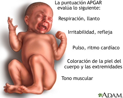 the importance of the apgar test in the assessment of a new born baby This apgar score calculator evaluates whether the new born infant requires any medical attention and checks for the five neonatology clinical signs.