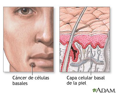 Cáncer de células basales