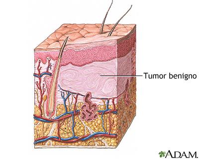 Tumor benigno de la piel