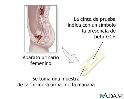 Prueba De Embarazo Medlineplus Enciclopedia Médica Illustración