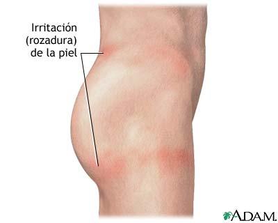 Irritación de la piel