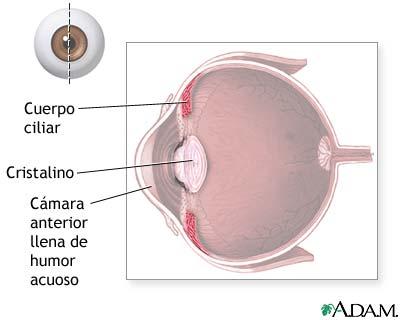 Cuerpo ciliar: MedlinePlus enciclopedia médica illustración