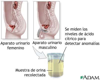 Prueba del ácido cítrico en la orina