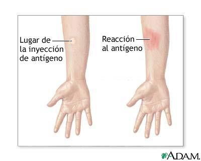 Examen de piel EAG