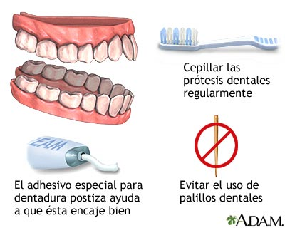 Cuidado de la dentadura postiza