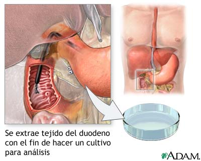 Cultivo del tejido duodenal