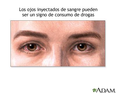 Signos de abuso de drogas