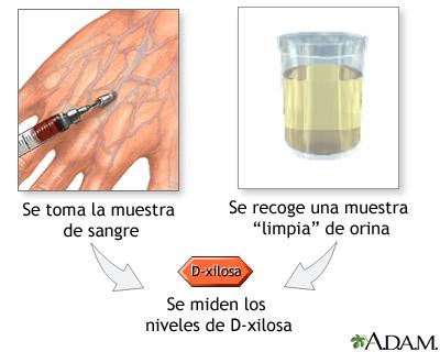 Exmenes de niveles D-xylosa