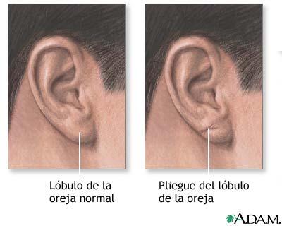 Pliegue del lóbulo de la oreja