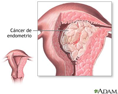 Cáncer endometrial
