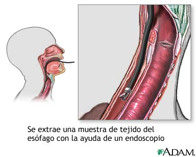 Cultivo de tejido esofágico