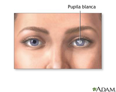 Pupila blanca