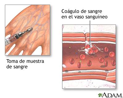 Coágulos sanguíneos