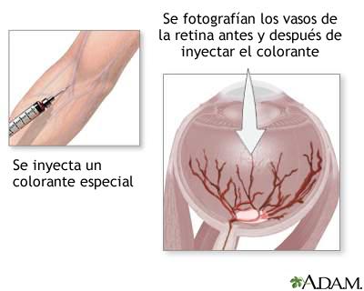 Inyección de colorante en la retina