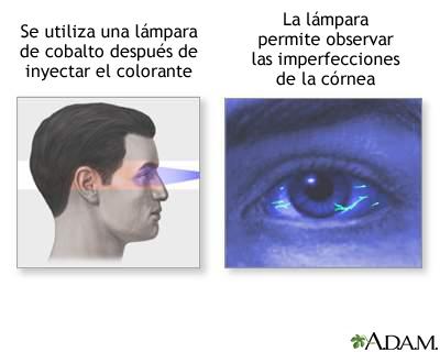 Examen de fluoresceína en el ojo