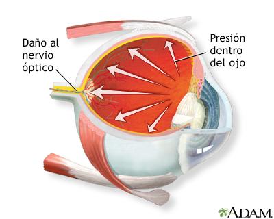 Glaucoma: MedlinePlus enciclopedia médica