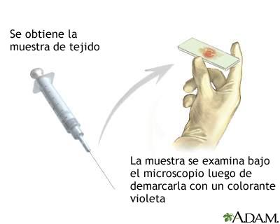 Tinción de gram de biopsia tisular