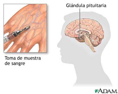 Examen de estimulación de la hormona del crecimiento