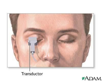 Ecoencefalograma de cabeza y ojo