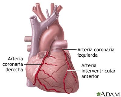 Arterias cardíacas anteriores