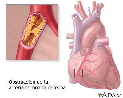Resultado de imagen para Coronarias, obstrucción