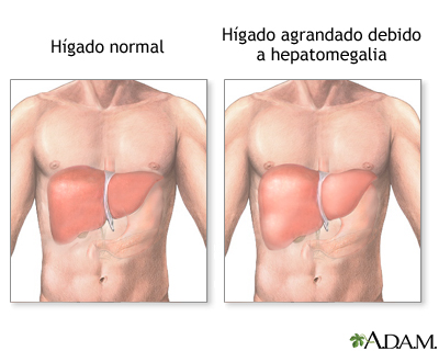 Hepatomegalia
