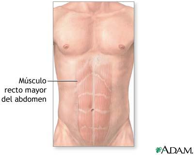 Músculos abdominales: MedlinePlus enciclopedia médica illustración