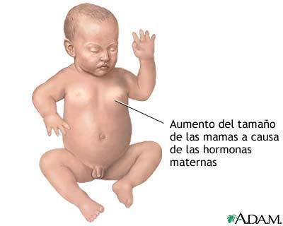 Efectos hormonales en los recién nacidos