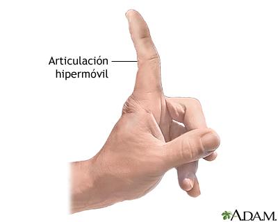 Articulaciones hipermóviles