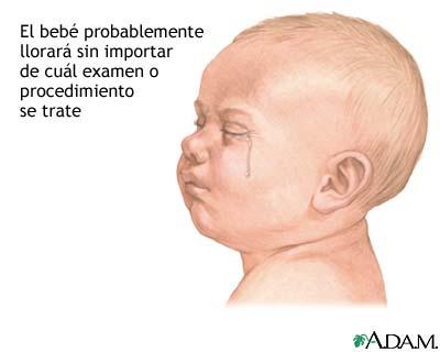 Preparación para un examen o procedimiento en un niño menor de un año