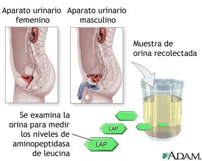 Prueba de aminopeptidasa de leucina en orina