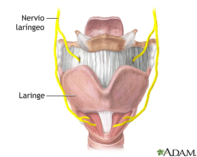 Daño al nervio laríngeo