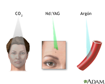 Terapia con láser