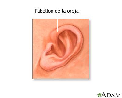 Pabellón auricular de un recién nacido