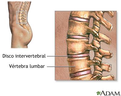 De la osteocondrosis y spondiloartroza del departamento de pecho de la columna vertebral