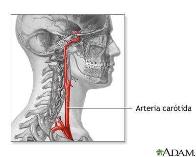 Anatomía de la arteria carótida: MedlinePlus enciclopedia médica ...
