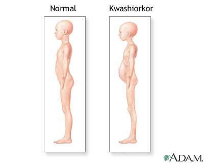 Síntomas de Kwashiorkor