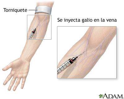 Inyección de galio