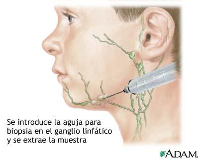 Cultivo de ganglio linfático