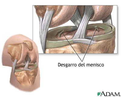 Desgarros de menisco