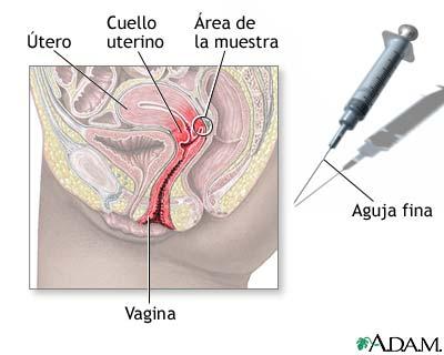 Toma de muestra con aguja del cuello uterino