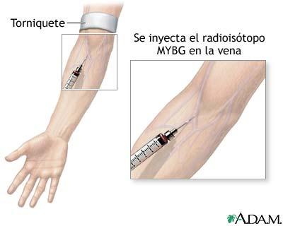Inyección de MIBG