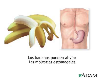 Bananas y náuseas