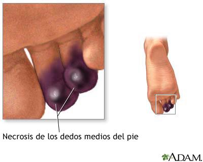 Necrosis de los dedos de los pies