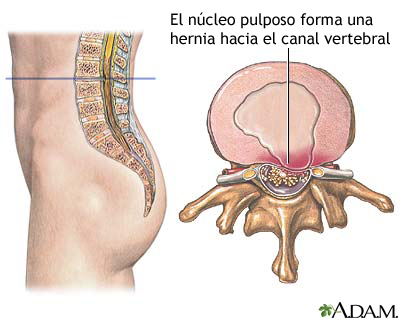 http://www.nlm.nih.gov/medlineplus/spanish/ency/images/ency/fullsize/9700.jpg
