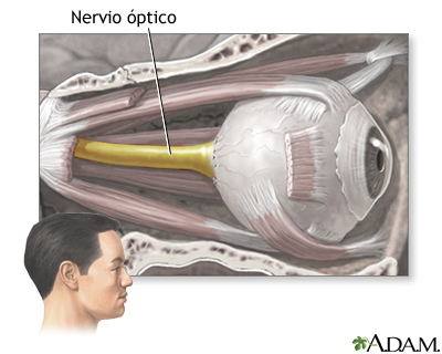 A.A.BA.VI.: EL NERVIO OPTICO. DISTROFIA DEL NERVIO OPTICO