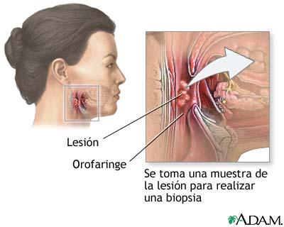 Biopsia de lesión orofaríngea: MedlinePlus enciclopedia médica