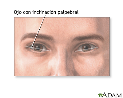 Inclinación palpebral