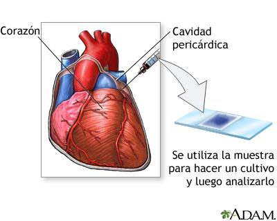 Tinción del líquido pericárdico