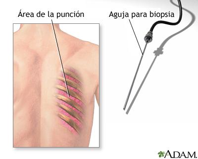 Biopsia de pulmón